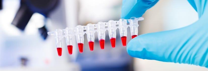 Test ojcostwa z grupy krwi